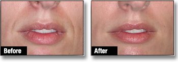 Dermal Fillers before after