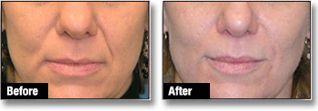 JUVÉDERM® Dermal Fillers Before and After