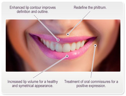 Lip Enhancement with JUVÉDERM® Dermal Fillers