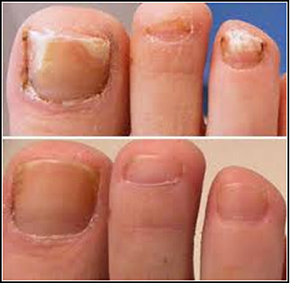 Nail fungus (onychomycosis) Before and After