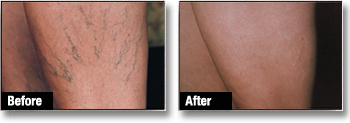 Spider thread Veins Before and After
