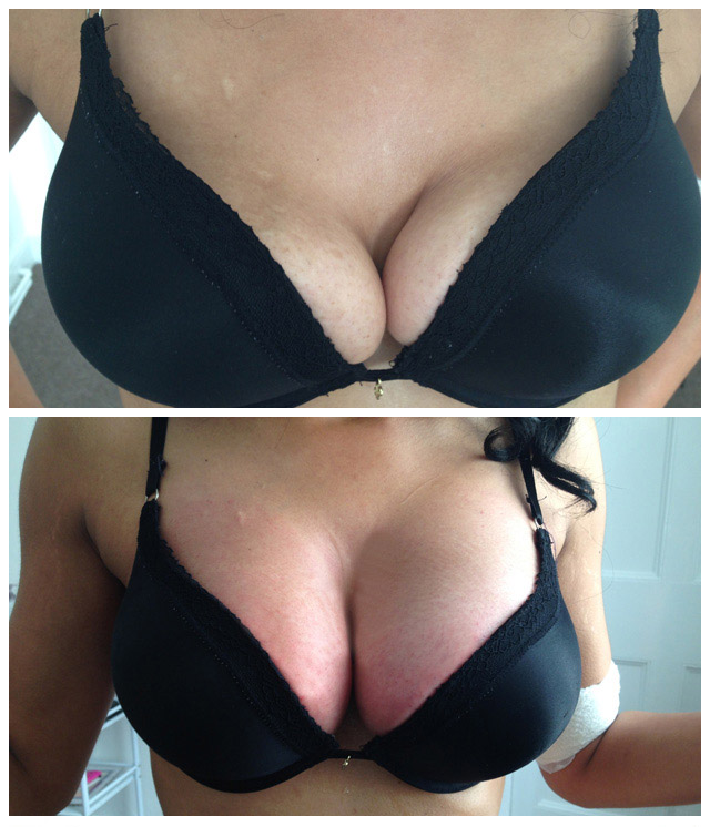 http://www.harleylaserclinic.co.uk/wp-content/uploads/2017/03/breast-11.jpg