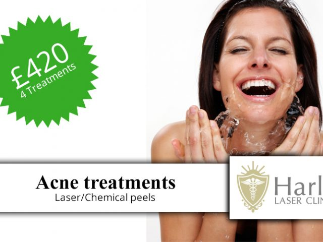 http://www.harleylaserclinic.co.uk/wp-content/uploads/2018/04/Acne-treatments-t-1-640x480.jpg