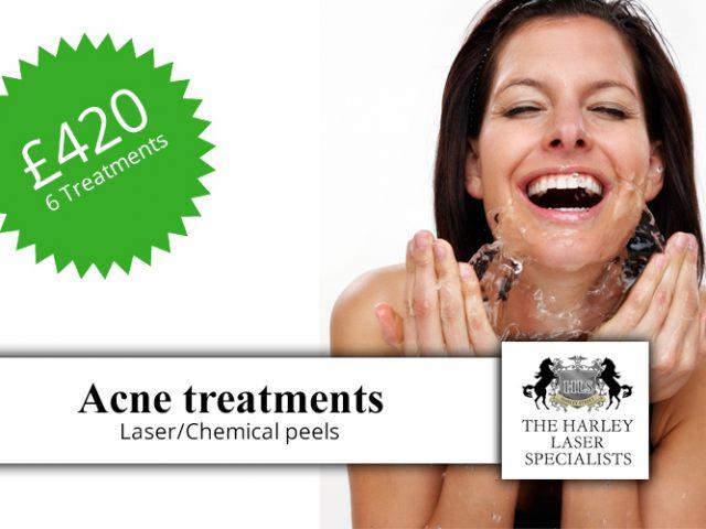 http://www.harleylaserclinic.co.uk/wp-content/uploads/2018/04/Acne-treatments-t-640x480.jpg