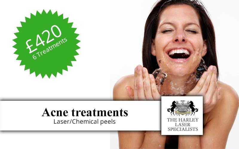 Acne-treatments-t.jpg