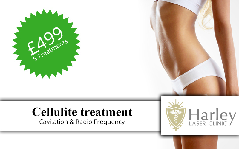 Cellulite-treatment-t.jpg