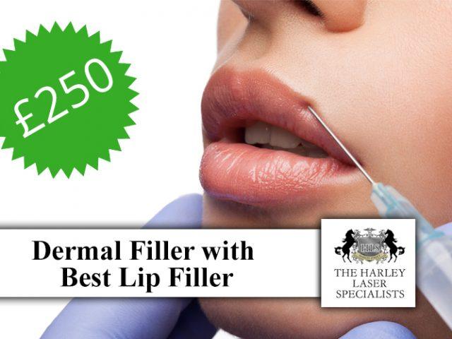 http://www.harleylaserclinic.co.uk/wp-content/uploads/2018/04/Dermal-Filler-with-Best-Lip-Filler-640x480.jpg